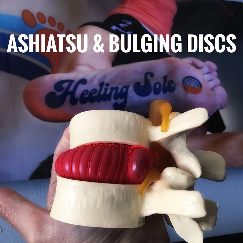 Ashiatsu-for-chronic-low-back-pain-and-bulging-discs